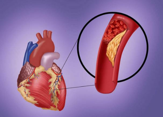 """血栓、脑梗都致命?看了这些,就能""""清理""""你的血管"""